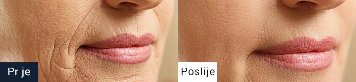 Koža pred in po uporabi kreme proti gubam 4D HYALURON