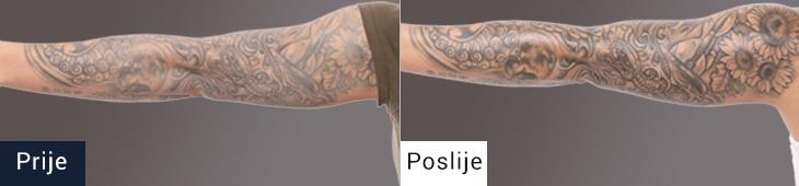 Koža pred in po uporabi mazila za nego tetovaže TATTOO NANO SHOCK