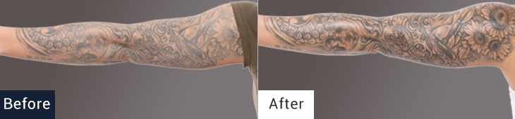Skin before and after the use of TATTOO NANO SHOCK
