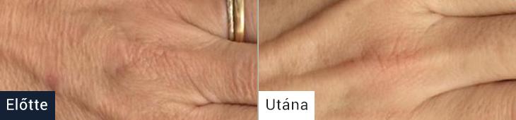 Koža pred in po uporabi kreme za roke AQUA