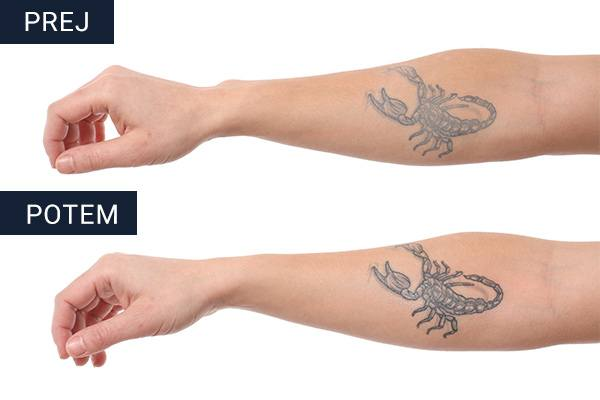 TATTOO NANO SHOCK Before After