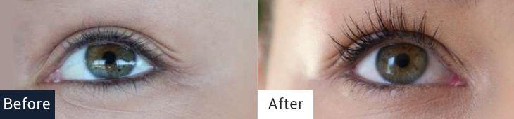 Eyelashes before and after use of EYELASH serum.