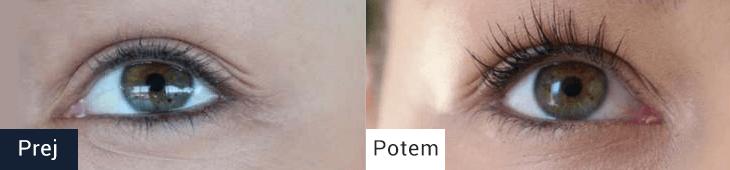 Trepalnice pred in po uporabi seruma za rast trepalnic EYELASH