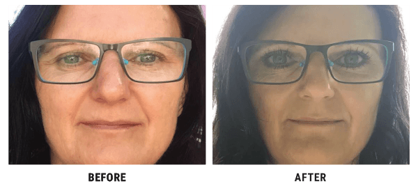 Annie Jones before and after using Lux-Factor 4D HYALYRON anti-wrinkle cream