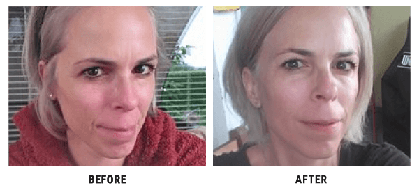Abigail before and after 4D HYALYRON cream