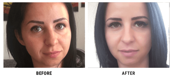 Nataly before and after 4D HYALYRON cream