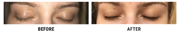 Ivona Pavić before and after using Lux-Factor EYELASH serum