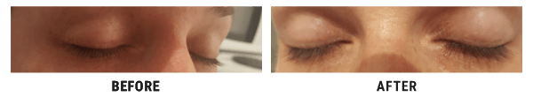 Mojca Bahun before and after eyelash picture